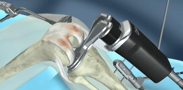 izomátvágás nélküli térdprotézis beültetés